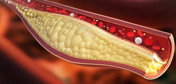 Doenças Autoadquiridas - Colesterol